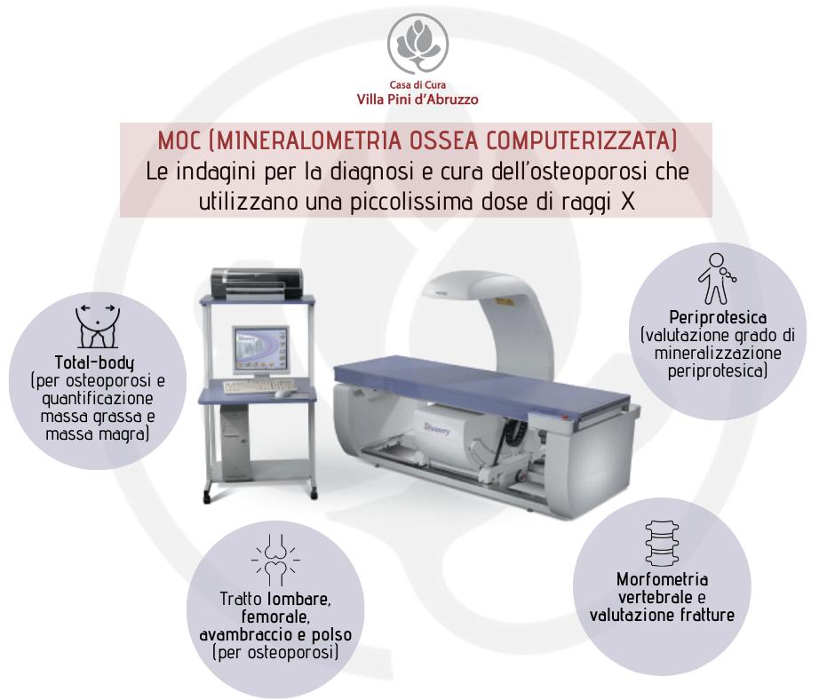 MOC (MINERALOMETRIA OSSEA COMPUTERIZZATA) Le indagini per la diagnosi e cura dell'osteoporosi utilizzano una piccolissima dose di raggi X (2)